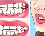 Làm thế nào để không nghiến răng khi ngủ?