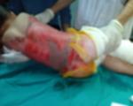 Tuyên Quang: Liên tiếp trẻ nhập viện do bỏng nước sôi