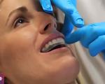 Miếng dán trắng răng có hại cho răng như thế nào?