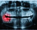 Cảnh báo phơi nhiễm phóng xạ khi chụp X-quang điều trị nha khoa