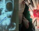 Phẫu thuật nhiều trường hợp dị tật bẩm sinh khó cho trẻ