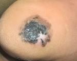 Từ một đốm đen nhỏ ở gan bàn chân, người đàn ông vào viện phát hiện ung thư da
