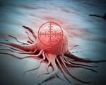 Aspirin dạng lỏng có thể tiêu diệt tế bào ung thư