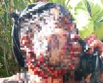 Một người đàn ông bị gấu rừng tấn công trọng thương