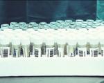 TP. Hồ Chí Minh: Ca nghi mắc COVID-19 tại TP. Thủ Đức có kết quả xét nghiệm khẳng định dương tính với SARS-CoV-2