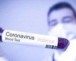 Có thêm 5 ca nhiễm COVID-19 mới tại TP.HCM