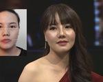 Change Life: Cô gái mặt lệch 'lột xác' trở thành người mẫu thời trang