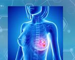 Trên 12.500 ca mắc ung thư vú mới mỗi năm tại Việt Nam