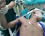 Né viên gạch khỏi rơi vào đầu, nam thanh niên trượt ngã bị thanh sắt xuyên thấu từ nách lên vai