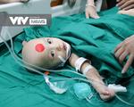 [CẬP NHẬT] Đang phẫu thuật tách dính 2 bé gái song sinh cực kỳ hiếm gặp