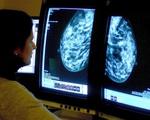 Phương pháp điều trị ung thư vú chỉ tốn 5 phút mỗi lần