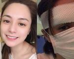 Hé lộ nguyên nhân vết thương dài 6cm của Chung Hân Đồng