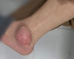 Khối u to như quả ổi 'mọc' ở chân sau khi chữa gout bằng thuốc đông y