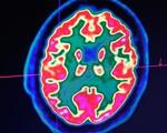 Gen 'thây ma' khiến tế bào não người vẫn hoạt động nhiều giờ sau qua đời