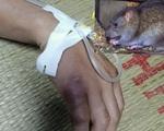 Nghi mắc dịch hạch sau khi bị chuột cắn vào tay