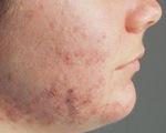 Điều trị bệnh viêm da dị ứng trong tiết giao mùa