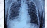 Bùng phát lao phổi trên bệnh nhân suy nhược cơ thể