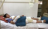 Sau tiếng nổ, người mẹ tá hỏa thấy con trai bị bốc cháy