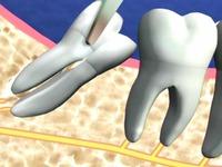 Có nên nhổ răng 'khôn' mọc lệch?
