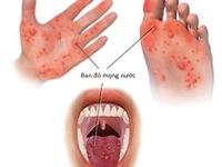 Gia tăng số trẻ mắc bệnh tay chân miệng