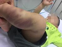 Đã xác định nhân thân cháu bé bị bạo hành