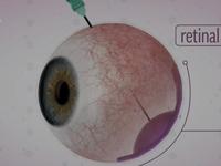 Phương pháp điều trị gen mở ra hy vọng cho người khiếm thị