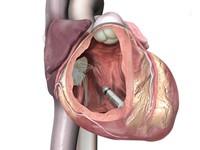 Mỹ: Cấy ghép máy tạo nhịp tim nhỏ nhất thế giới