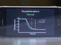 Ứng dụng phát hiện tổn thương não trên điện thoại thông minh