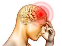 Dị dạng mạch máu não làm tăng tỷ lệ đột quỵ ở người trẻ tuổi