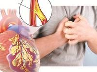 Thuốc lá là nguyên nhân chính của bệnh tim mạch
