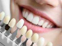 Các phương pháp làm trắng răng