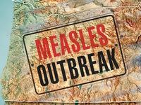 Mỹ ban bố tình trạng khẩn cấp tại bang miền Tây do bệnh sởi