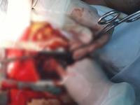 Cứu người đàn ông bị thanh gỗ đập vào lồng ngực gây vỡ tim