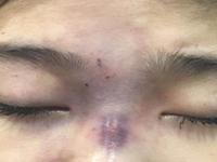Thêm một cô gái trẻ bị mù mắt sau tiêm filler nâng mũi tại spa