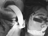 Chó Pitbull tấn công: Bé 4 tuổi đứt khí quản, rách vùng cổ ngực