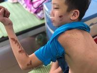 Vụ bạo hành nhân viên quán bánh xèo: Ngày chỉ ngủ 3 tiếng, lưng lỗ chỗ vết thương do dụng cụ cạo vảy cá