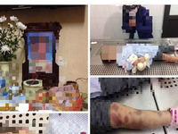 Bé gái 3 tuổi nghi bị mẹ và cha dượng bạo hành đến tử vong