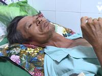 Vụ sập công trình ở Đồng Nai: Nạn nhân nhớ lại giây phút 'xác định cuộc đời kết thúc'