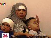Nỗi ám ảnh của người tị nạn Syria từ vụ nổ tại Lebanon
