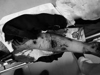 Thanh niên 17 tuổi đa chấn thương do pháo tự chế phát nổ