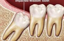 Tỷ lệ tử vong do nhổ răng khôn là 1/400.000 người