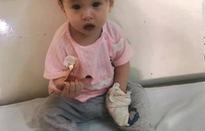 Ánh mắt cầu cứu của bé gái tim bẩm sinh 11 tháng tuổi