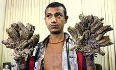 Người cây tại Bangladesh