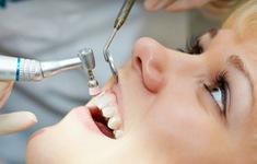 Có nên lấy cao răng thường xuyên?