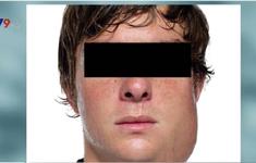 Quai bị - Bệnh truyền nhiễm có thể gây nhiều biến chứng