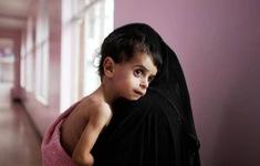 85.000 trẻ em dưới 5 tuổi thiệt mạng do nạn đói tại Yemen