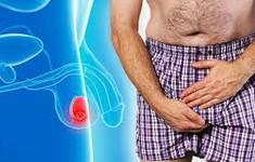 Viêm tinh hoàn ở nam giới có thể dẫn tới vô sinh