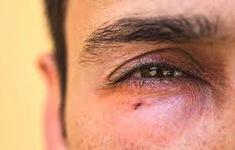 Cẩn thận với biến chứng về mắt do sốt xuất huyết