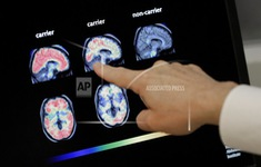 Bệnh Alzheimer có thể bắt đầu khi còn trong bụng mẹ