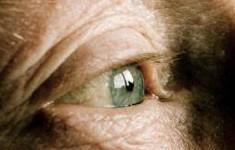 Điều trị đục thủy tinh thể ở người già